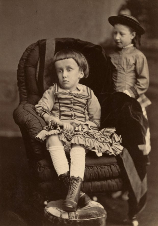 Black and white photograph of Mary Macdonald, a small child, propped up in a chair with her legs crossed in front of her, with a vacant expression on her face. Her head is abnormally large and she has dark hair combed down in bangs over her forehead.