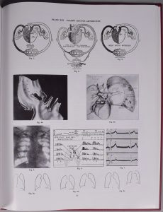 """Photograph of page 33 of the Atlas of Congenital Cardiac Disease by Maude Abbott, black and white. The page is titles """"Plate XIII. Patent Ductus Arteriosus"""" and contains 11 figures illustrating cardiac arteries."""
