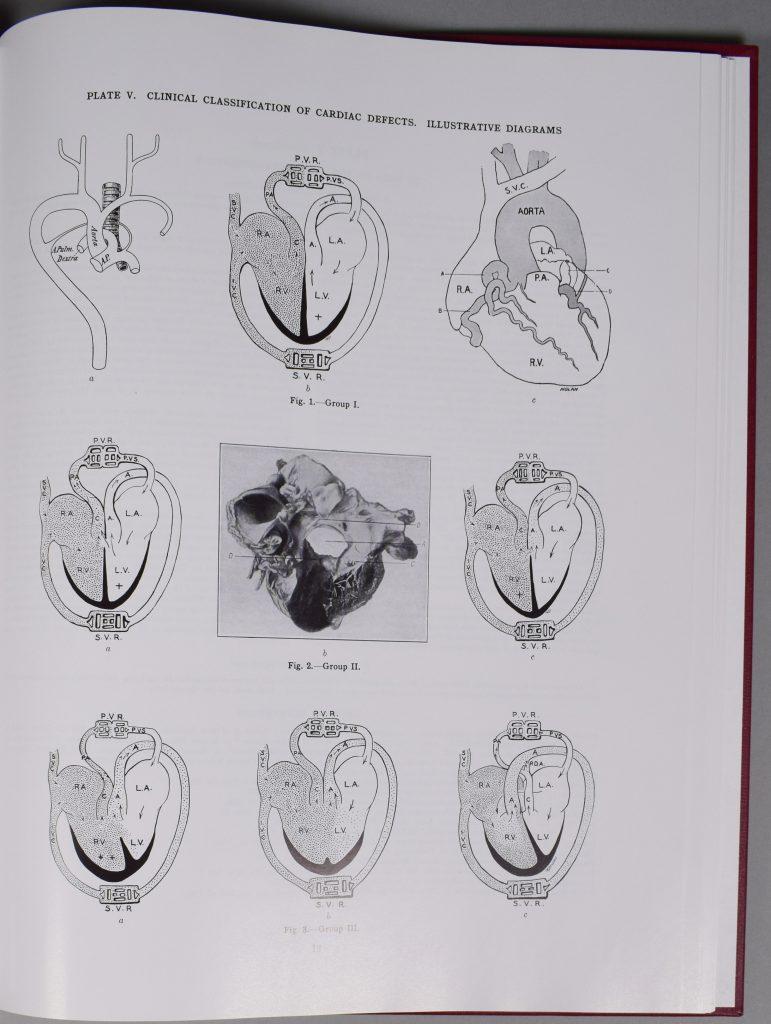 Photographie de la page 12 de l'Atlas de Maude Abbott. En haut de la page, l'inscription « Plate V. Clinical Classification of Cardiac Defects. Illustrative Diagrams » et on y voit 9 figures représentant différentes parties du cœur en images.