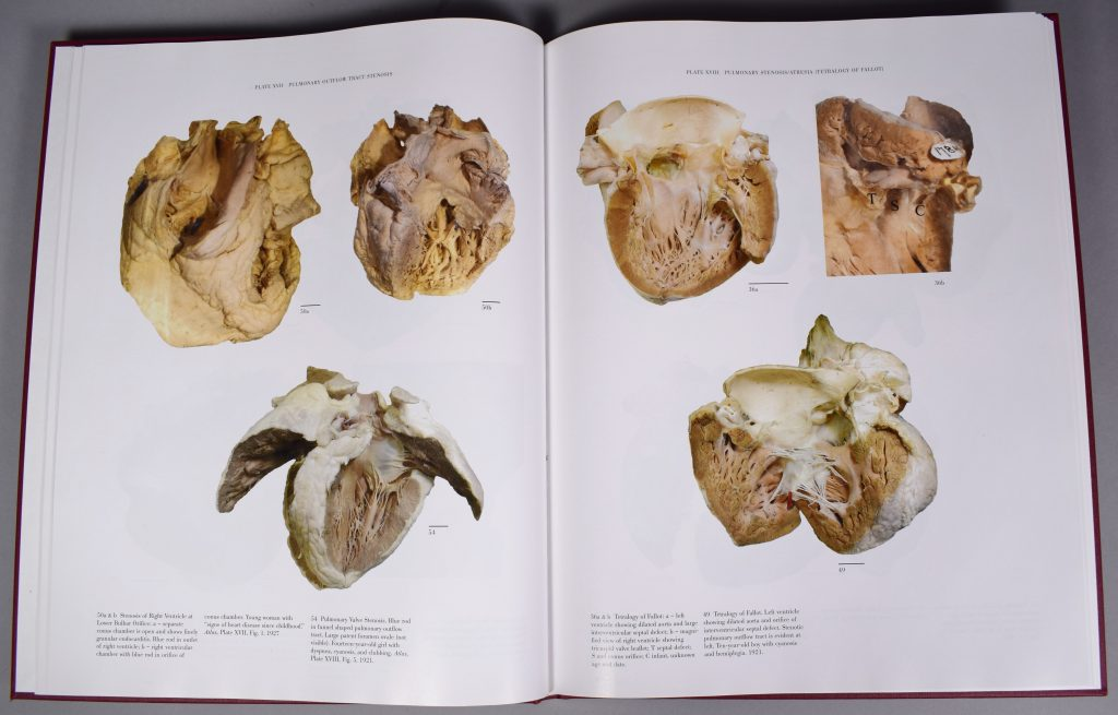 """Colour photograph of two pages of Maude Abbott's Atlas of Congenital Cardiac Disease. The page on the left, """"Plate XVII Pulmonary Outflow Tract Stenosis"""", and the one on the right, """"Plate VXIII Pulmonary Stenosis/Atresia (Tetralogy of Fallot)"""", present heart specimens in colour, with explanations at the bottom of the page."""