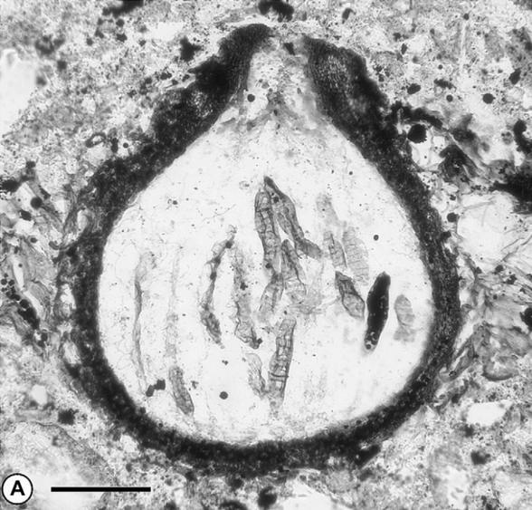 Une photo noir et blanche de M. dictyosporus vu d'un microscope